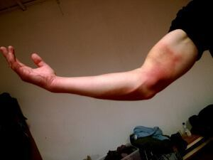 """Ein ausgeprägter """"blauer Fleck"""" an einem Arm"""
