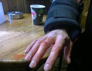 Desinfektion einer verletzten Hand